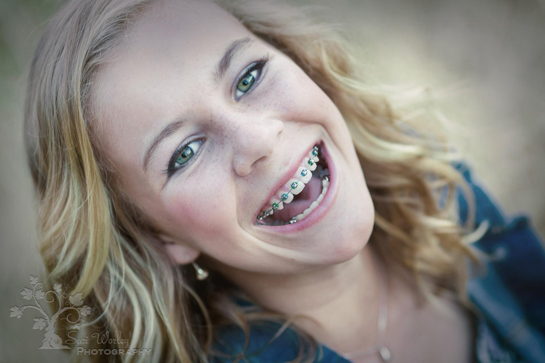 Teenagers are such fun! #SuziWorleyPhotography #FamilyPictures #Braces